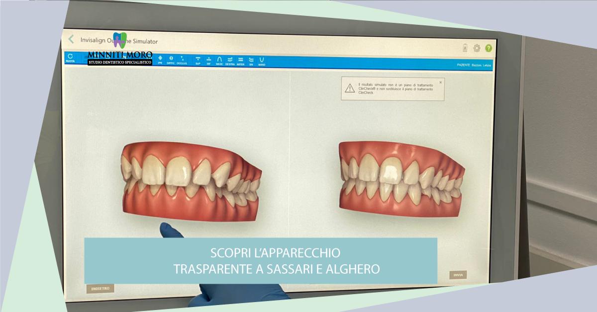 Studio Dentistico Minniti Moro: l'apparecchio trasparente a Sassari e Alghero